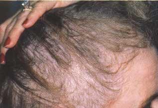 Que cura la cabeza de la caspa y la caída de los cabello